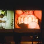 Willi Geller beim Erarbeiten des Sulkus-Effektes im Frontzahnbereich. Bei einem Vortrag auf der Denttechnika in Köln.
