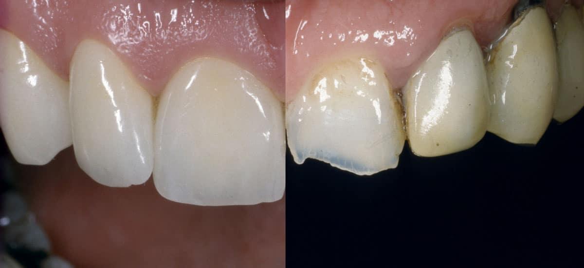 Zahnqualität steht bei uns an erster Stelle