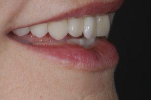 Unsere neugestalteten Zähne im Detail.