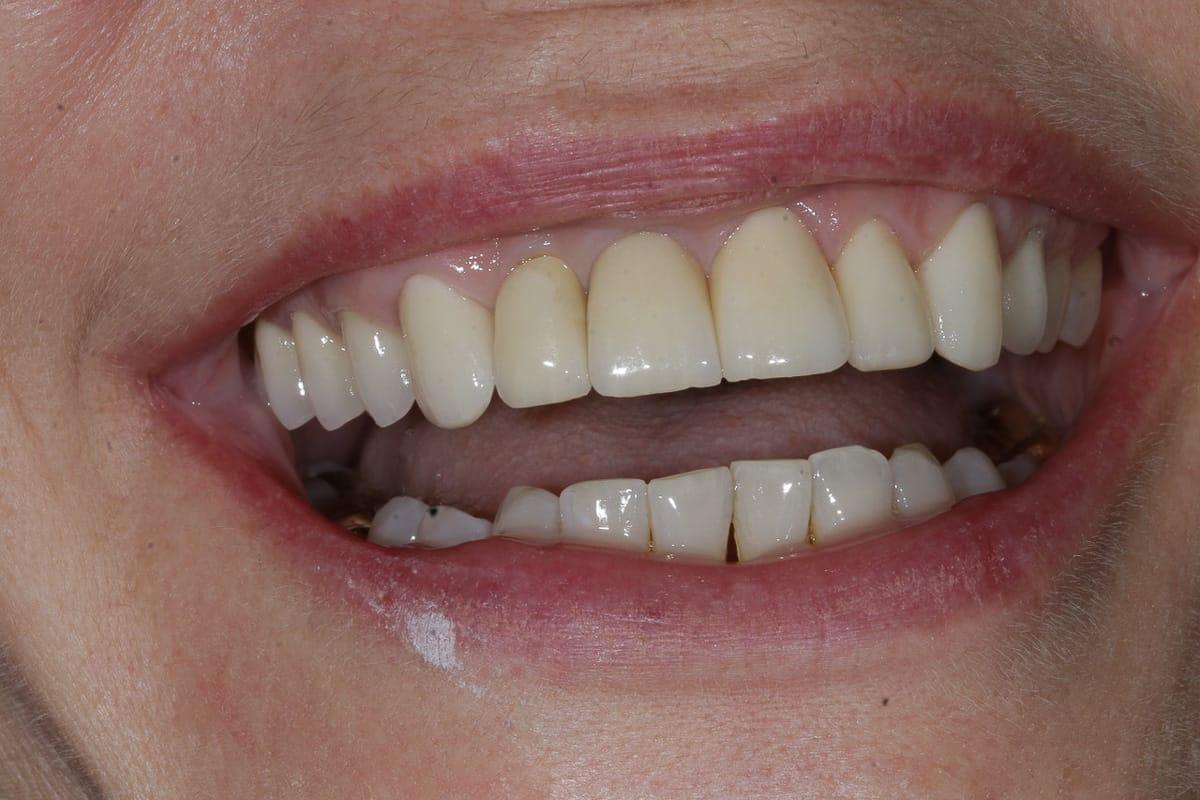 Fragen Zu Zahnprothesen