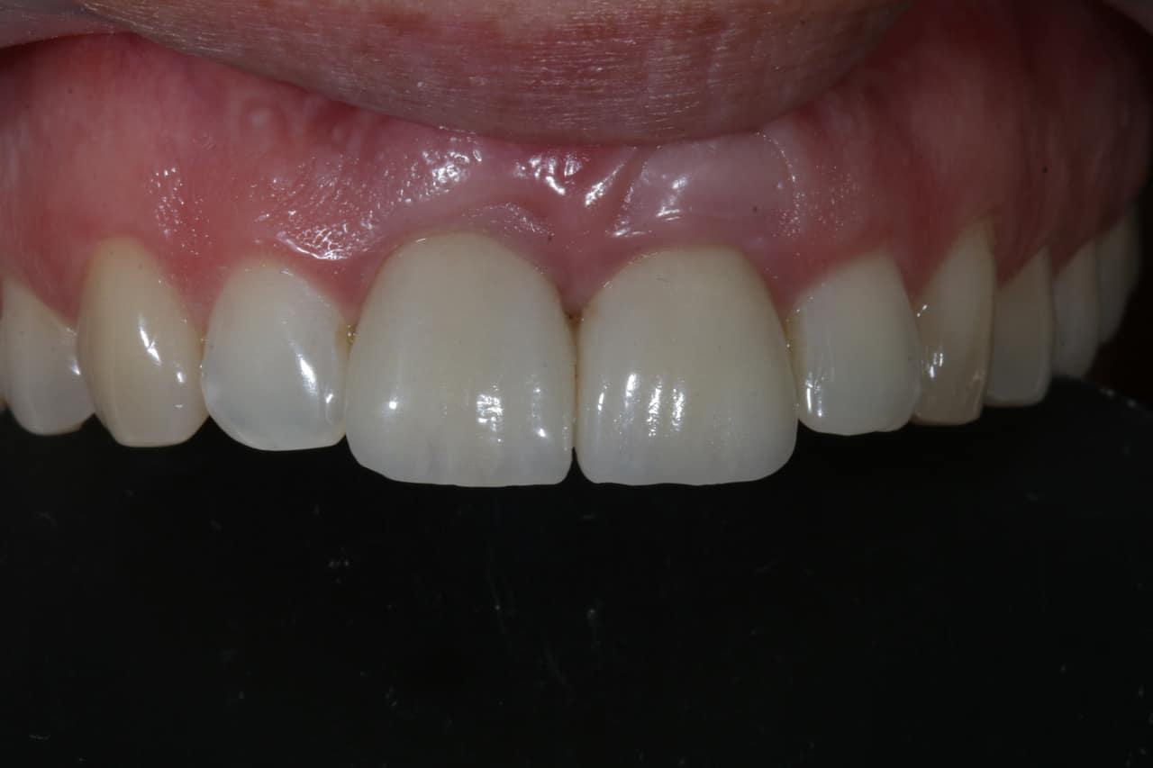 Zahnersatz und Zahnprothesen - 20