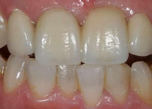 arsdentis zahnprothesen 12