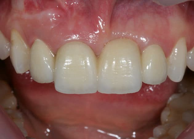 arsdentis zahnprothesen 14