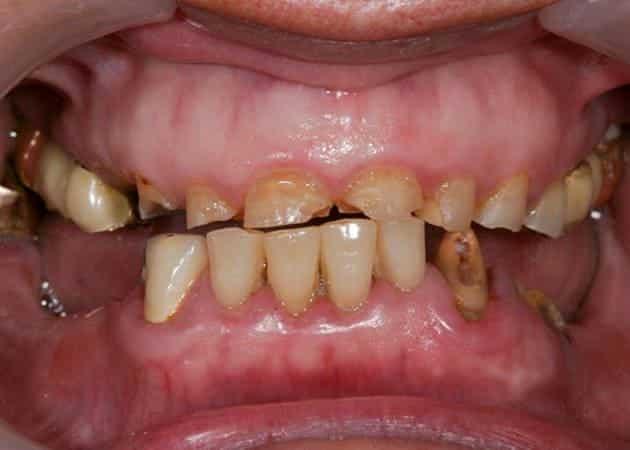arsdentis zahnprothesen 31