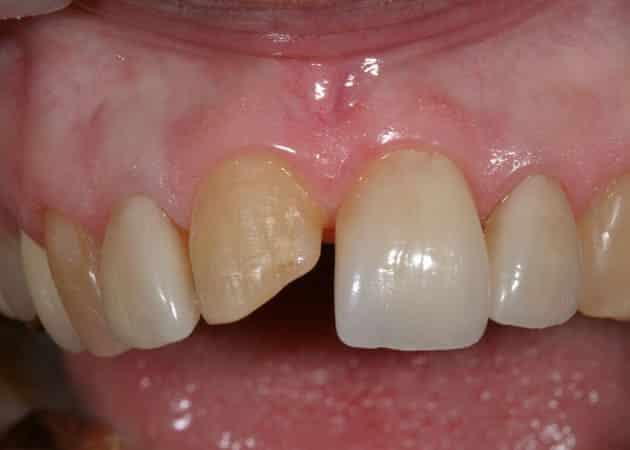 arsdentis zahnprothesen 39