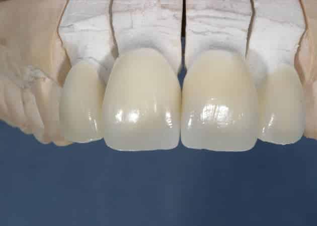 arsdentis zahnprothesen 44