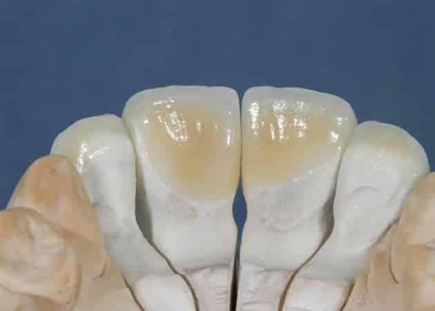 arsdentis zahnprothesen 45