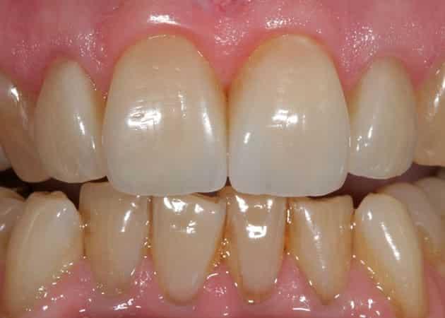 arsdentis zahnprothesen 48