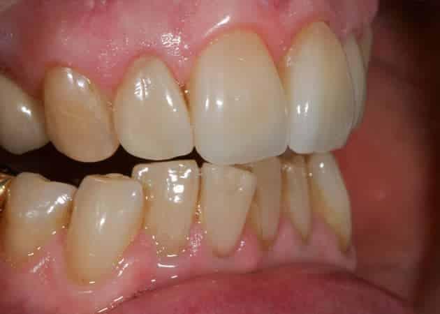 arsdentis zahnprothesen 49
