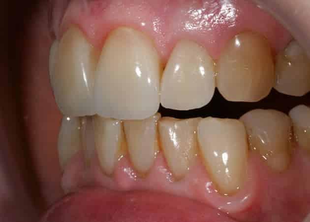 arsdentis zahnprothesen 50