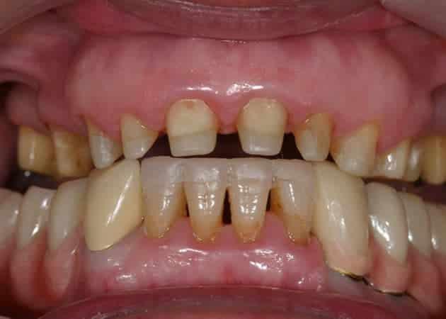 arsdentis zahnprothesen 76