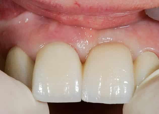 Kronen & Brücken, Zahnimplantate, Zahnprothesen - Zahnersatz