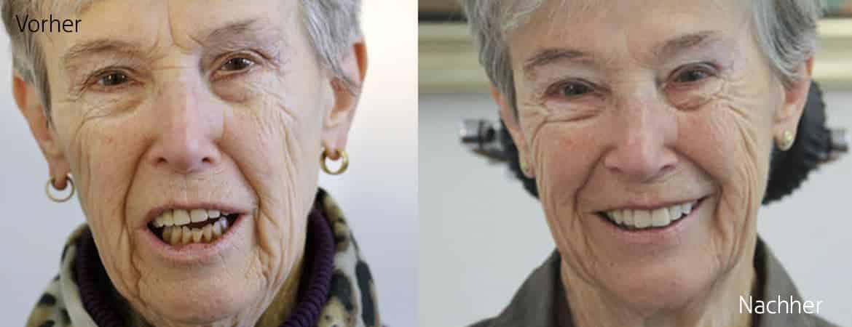 Vorher Nachher Zahnprothese