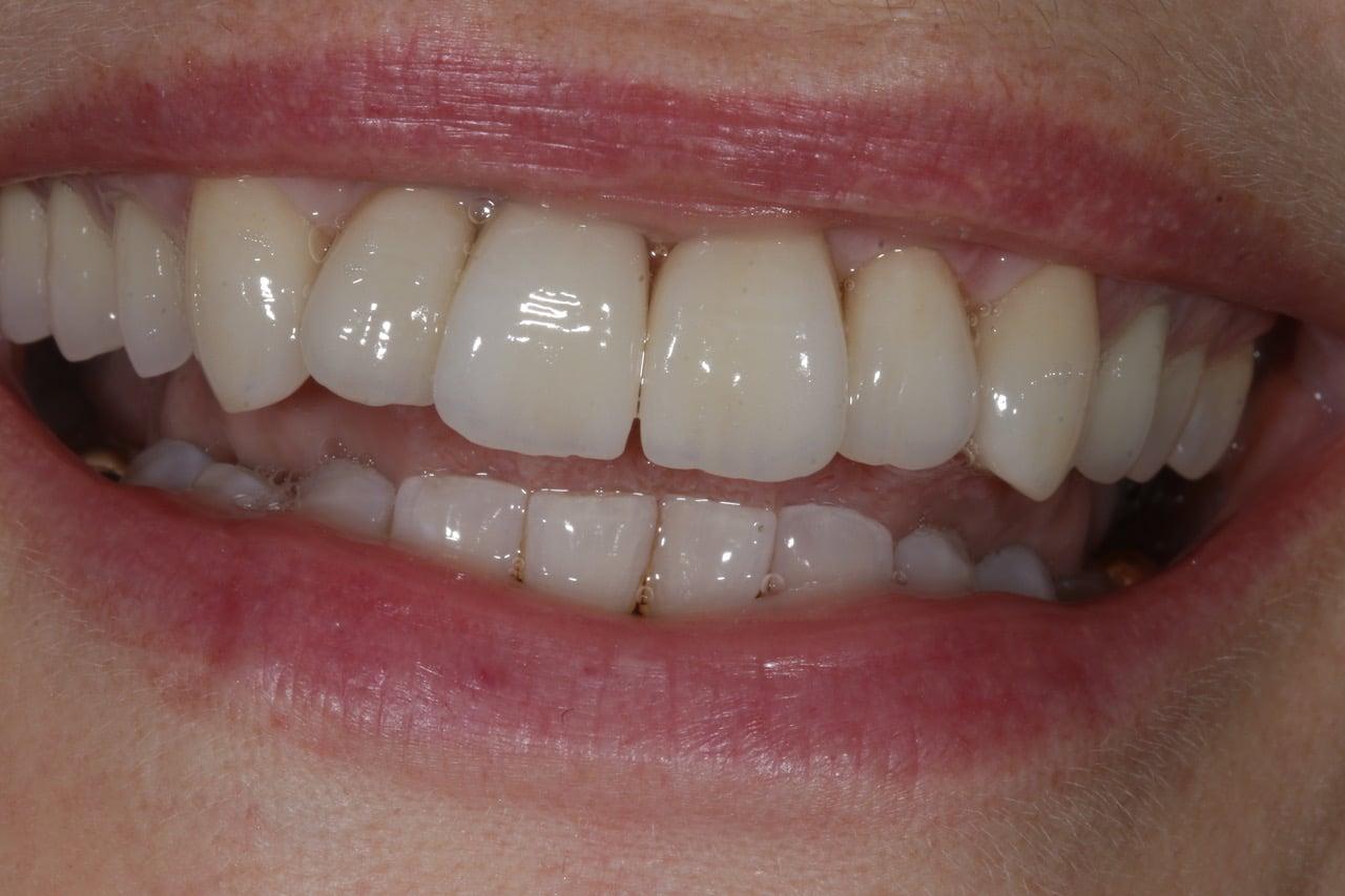 Neue Zähne nach der Eingliederung, wie gewachsen.