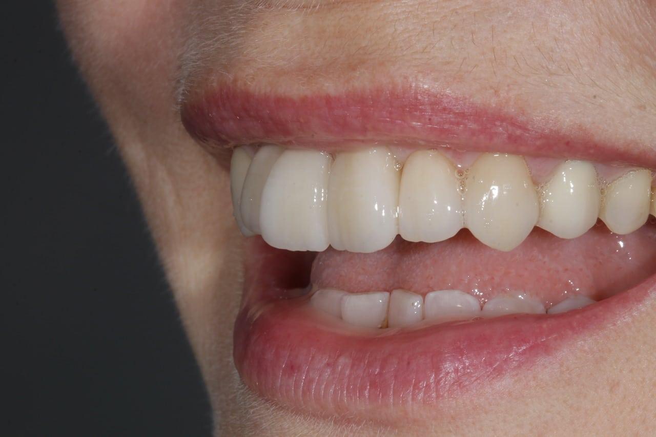 Unsere neugestalteten Zähne bei der Anprobe.
