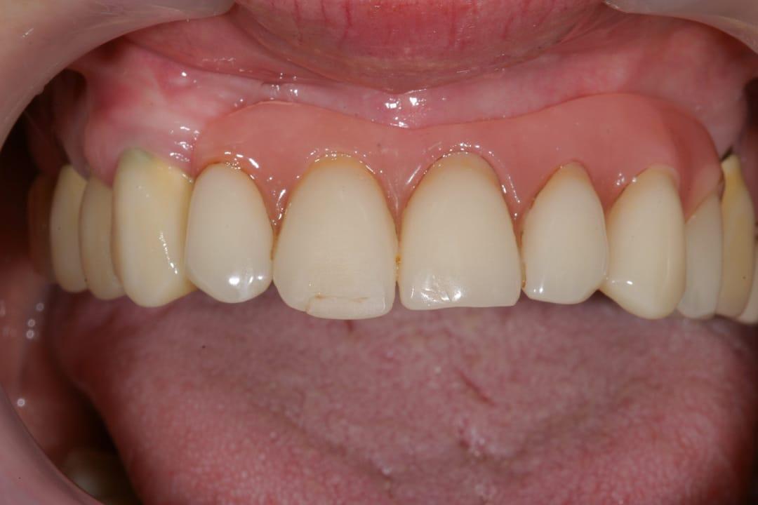 Zahnprothese vorher