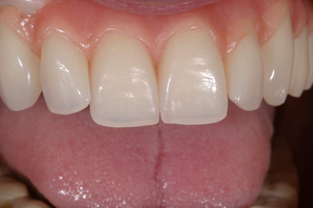 Zahnprothese nachher