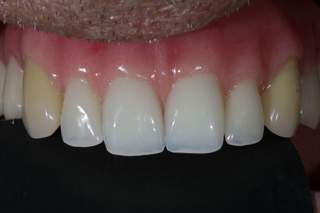 Stabi Base Zahnprothese