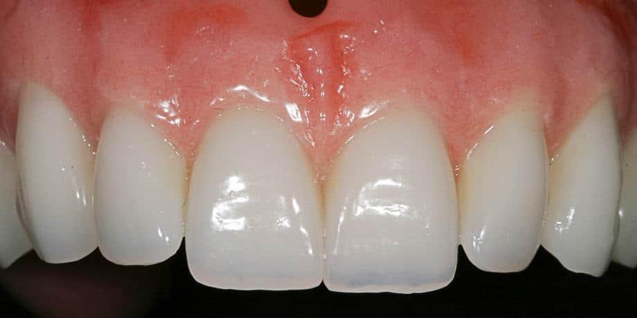 von echten Zähnen kaum zu unterscheiden.