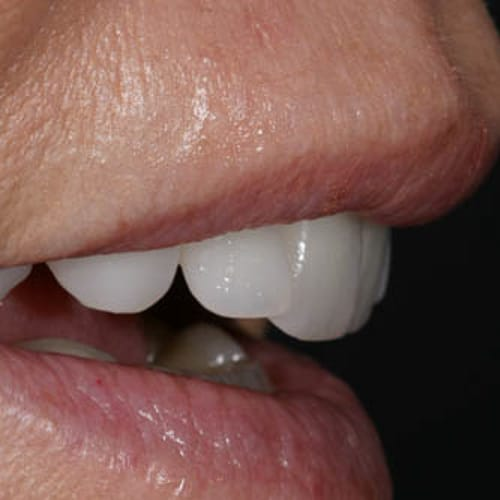 Zähne von Arsdentis sind wie gewachsen
